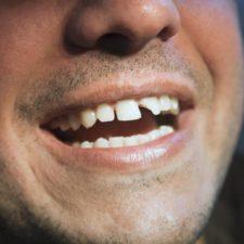 dream interpretation losing your teeth teeth falling out rotten teeth tooth